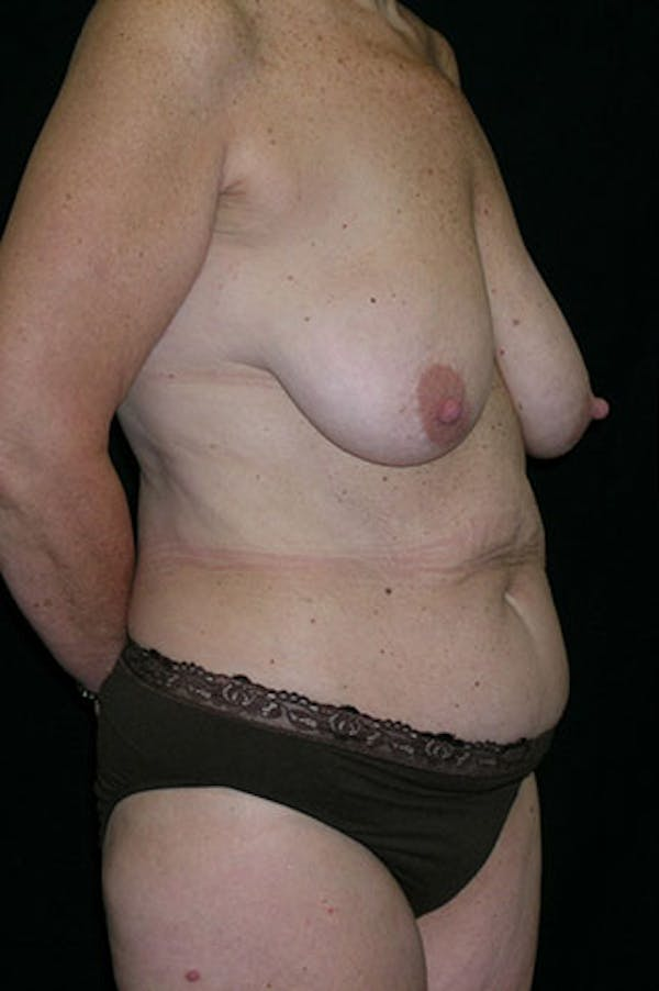 Mommy Makeover Gallery - Patient 23533904 - Image 7