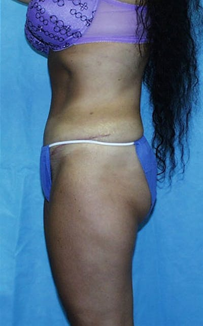 Tummy Tuck Gallery - Patient 23533903 - Image 4