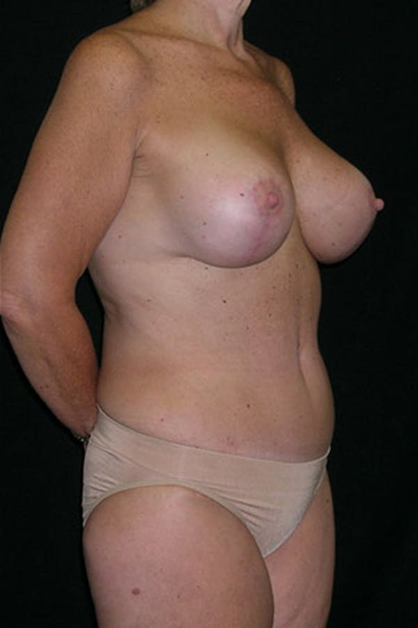 Mommy Makeover Gallery - Patient 23533904 - Image 8