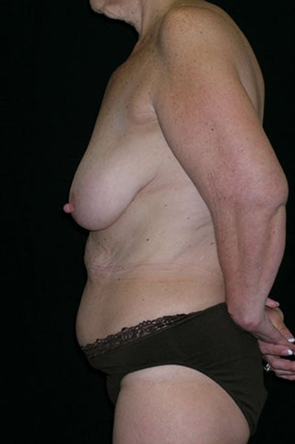 Mommy Makeover Gallery - Patient 23533904 - Image 9