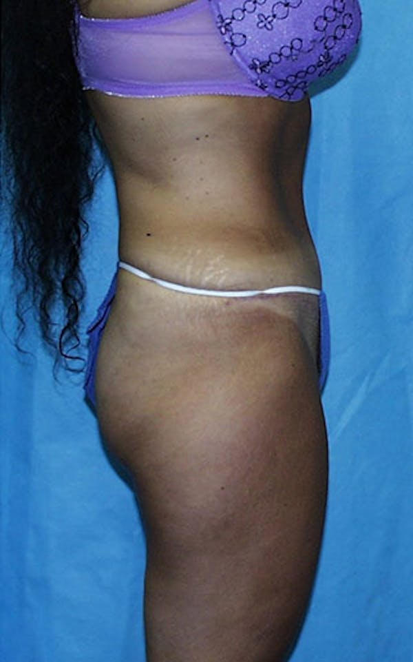 Tummy Tuck Gallery - Patient 23533903 - Image 6