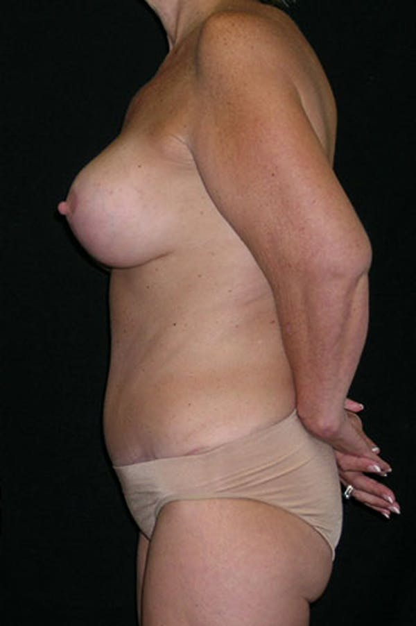 Mommy Makeover Gallery - Patient 23533904 - Image 10