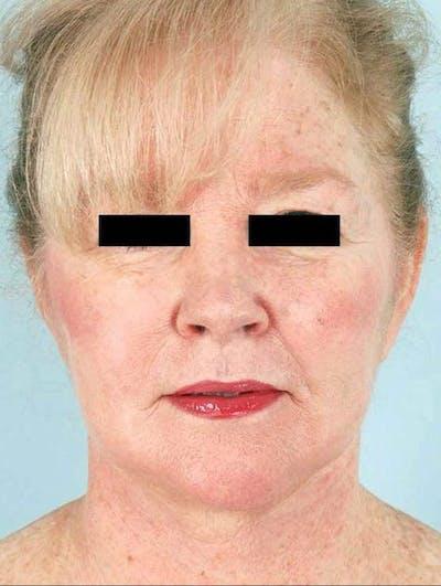 Liposuction & SmartLipo Gallery - Patient 23533905 - Image 2