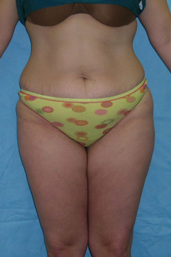 Tummy Tuck Gallery - Patient 23533908 - Image 1