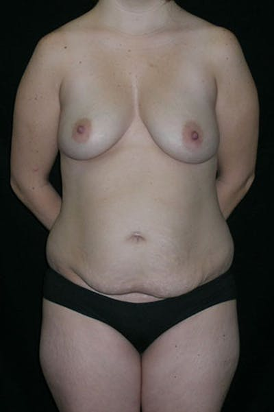 Mommy Makeover Gallery - Patient 23533910 - Image 1