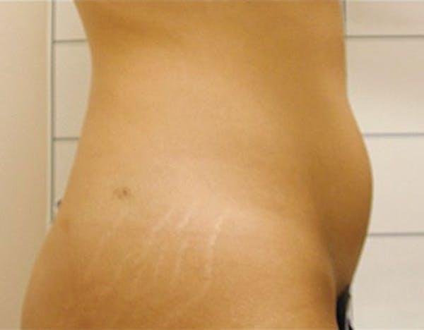 Liposuction & SmartLipo Gallery - Patient 23533906 - Image 1