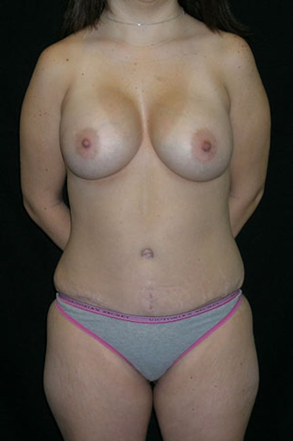 Mommy Makeover Gallery - Patient 23533910 - Image 2