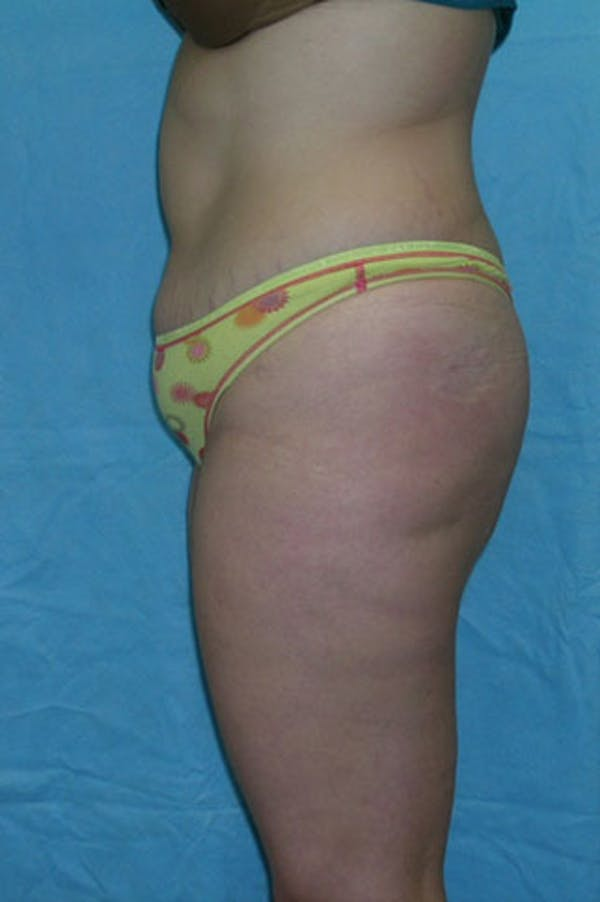 Tummy Tuck Gallery - Patient 23533908 - Image 3