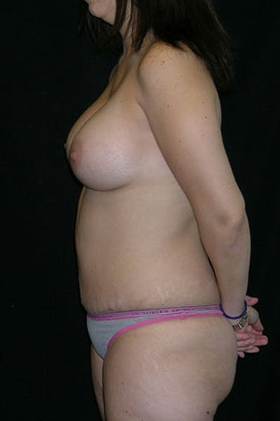 Mommy Makeover Gallery - Patient 23533910 - Image 4