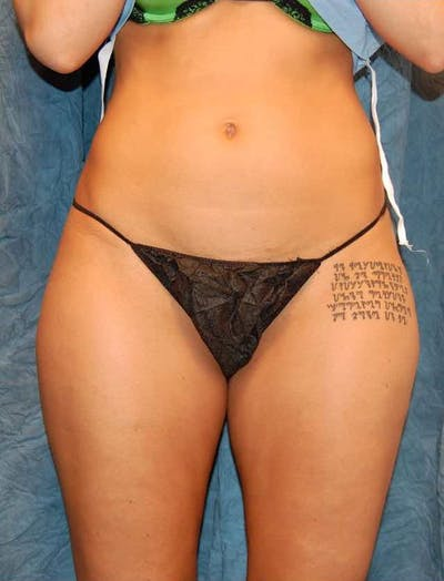 Liposuction & SmartLipo Gallery - Patient 23533909 - Image 1