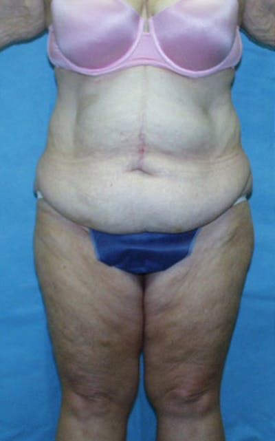 Tummy Tuck Gallery - Patient 23533913 - Image 1