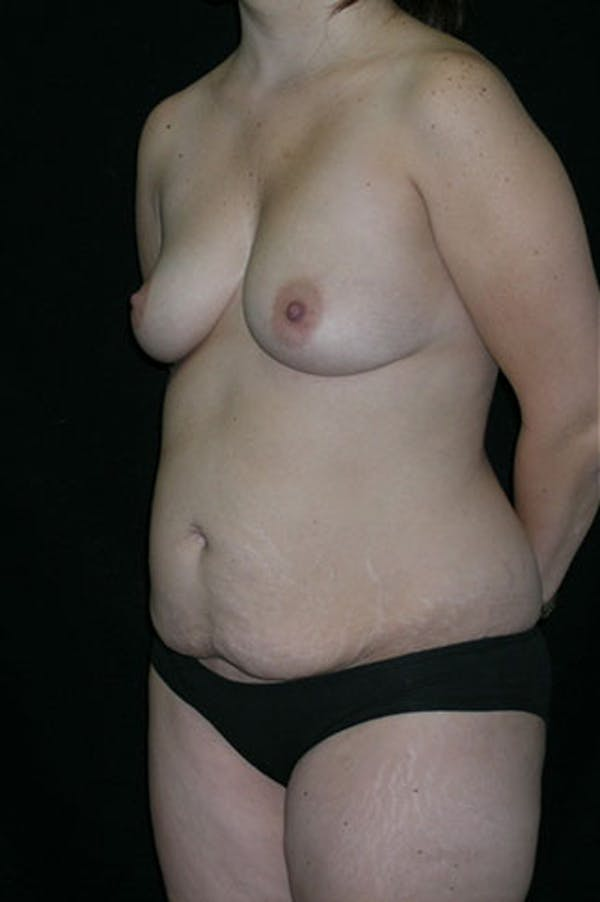 Mommy Makeover Gallery - Patient 23533910 - Image 7