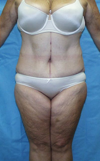 Tummy Tuck Gallery - Patient 23533913 - Image 2