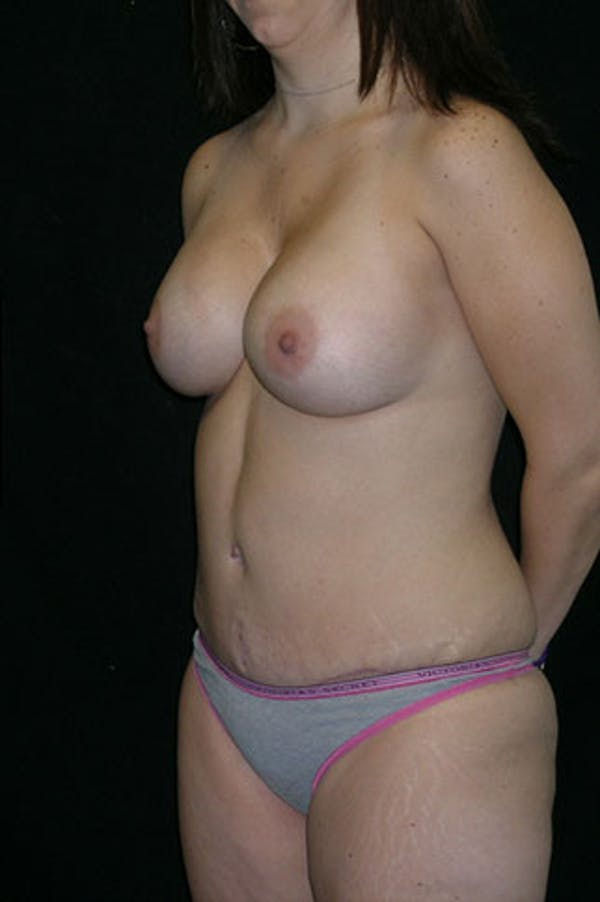 Mommy Makeover Gallery - Patient 23533910 - Image 8