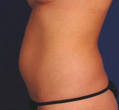 Liposuction & SmartLipo Gallery - Patient 23533911 - Image 1