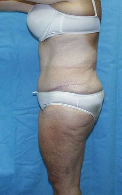 Tummy Tuck Gallery - Patient 23533913 - Image 4