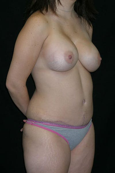 Mommy Makeover Gallery - Patient 23533910 - Image 10