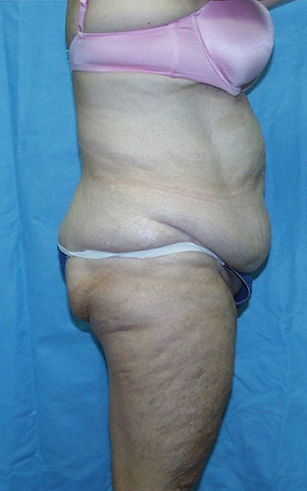 Tummy Tuck Gallery - Patient 23533913 - Image 5