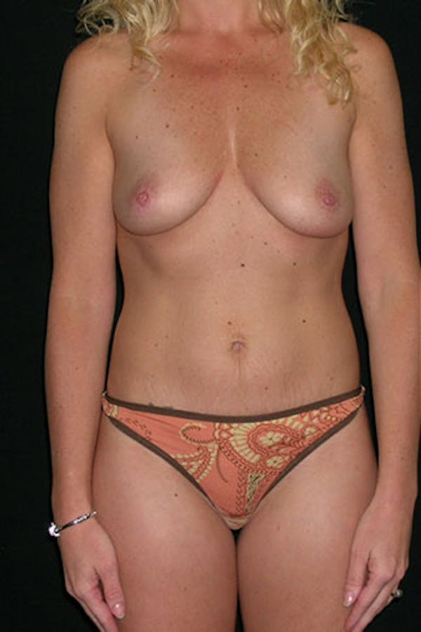 Mommy Makeover Gallery - Patient 23533914 - Image 1
