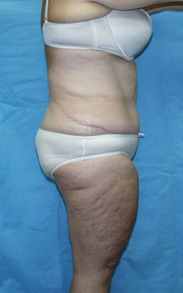 Tummy Tuck Gallery - Patient 23533913 - Image 6