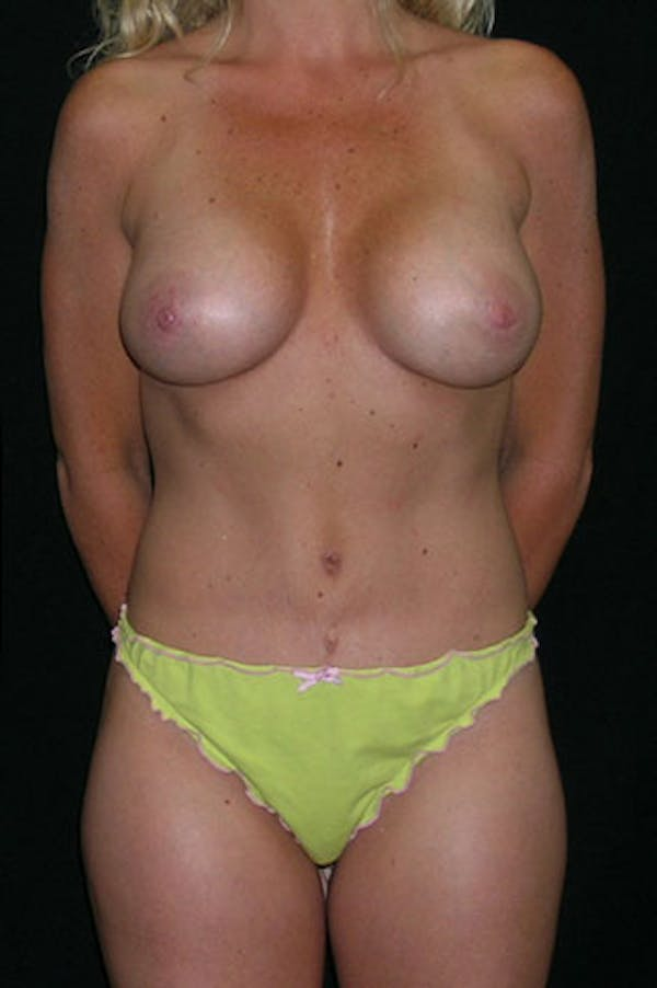 Mommy Makeover Gallery - Patient 23533914 - Image 2