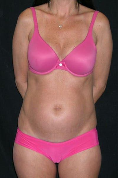 Tummy Tuck Gallery - Patient 23533915 - Image 1