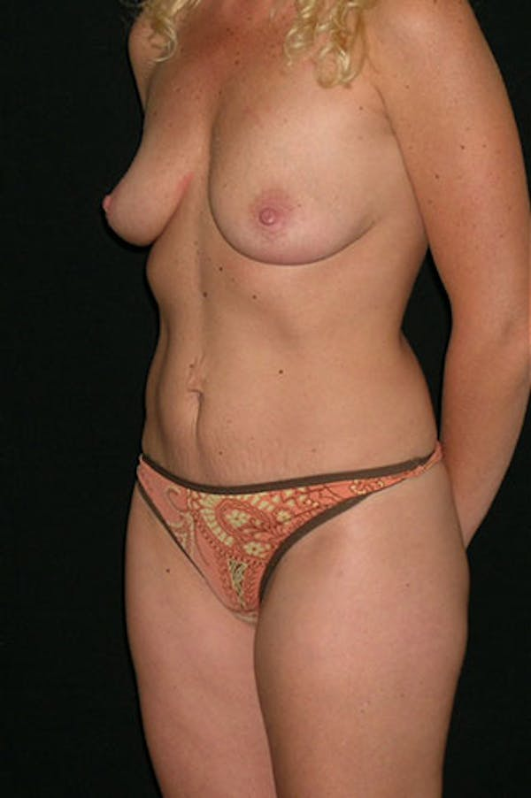 Mommy Makeover Gallery - Patient 23533914 - Image 3