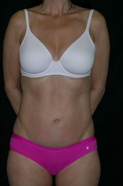 Tummy Tuck Gallery - Patient 23533915 - Image 2