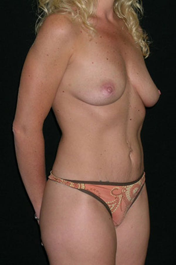 Mommy Makeover Gallery - Patient 23533914 - Image 5