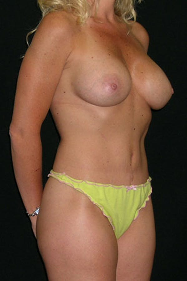 Mommy Makeover Gallery - Patient 23533914 - Image 6