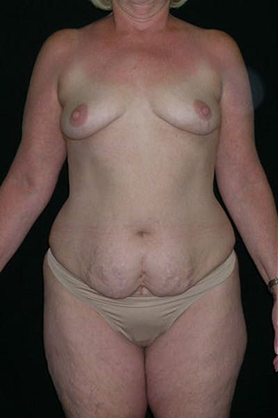 Mommy Makeover Gallery - Patient 23533919 - Image 1