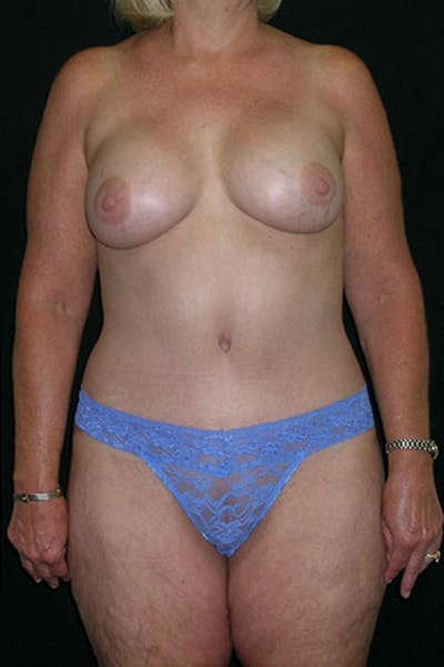 Mommy Makeover Gallery - Patient 23533919 - Image 2