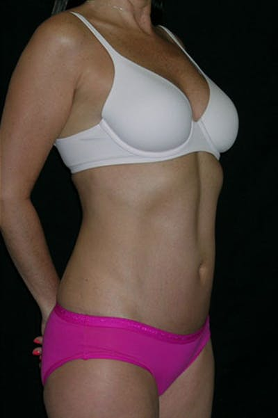 Tummy Tuck Gallery - Patient 23533915 - Image 10