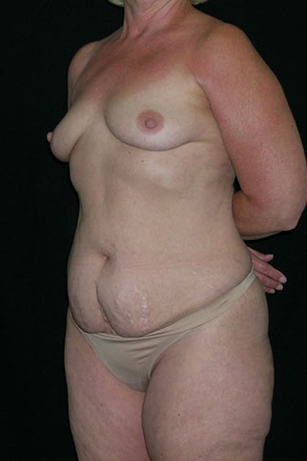 Mommy Makeover Gallery - Patient 23533919 - Image 3
