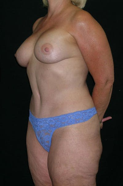 Mommy Makeover Gallery - Patient 23533919 - Image 4