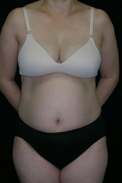 Tummy Tuck Gallery - Patient 23533917 - Image 1