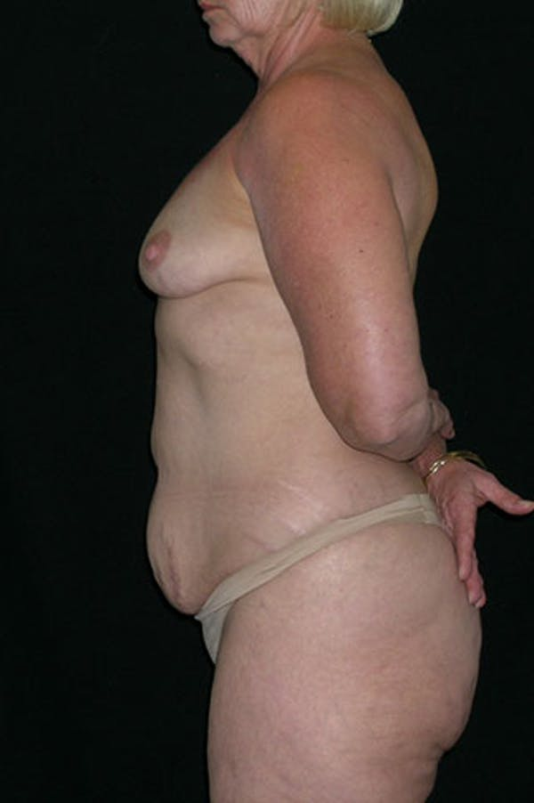 Mommy Makeover Gallery - Patient 23533919 - Image 5