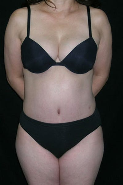 Tummy Tuck Gallery - Patient 23533917 - Image 2