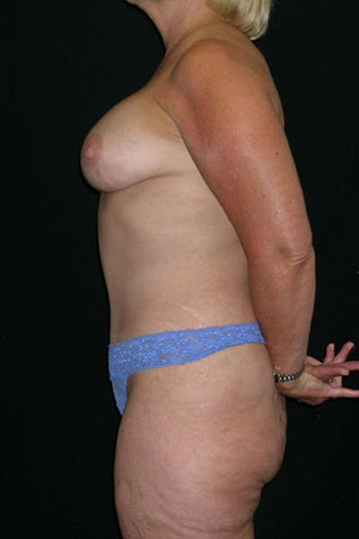 Mommy Makeover Gallery - Patient 23533919 - Image 6
