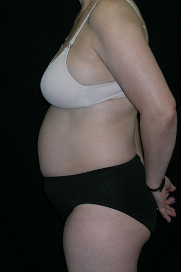 Tummy Tuck Gallery - Patient 23533917 - Image 3
