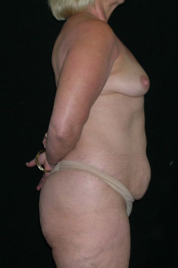 Mommy Makeover Gallery - Patient 23533919 - Image 7