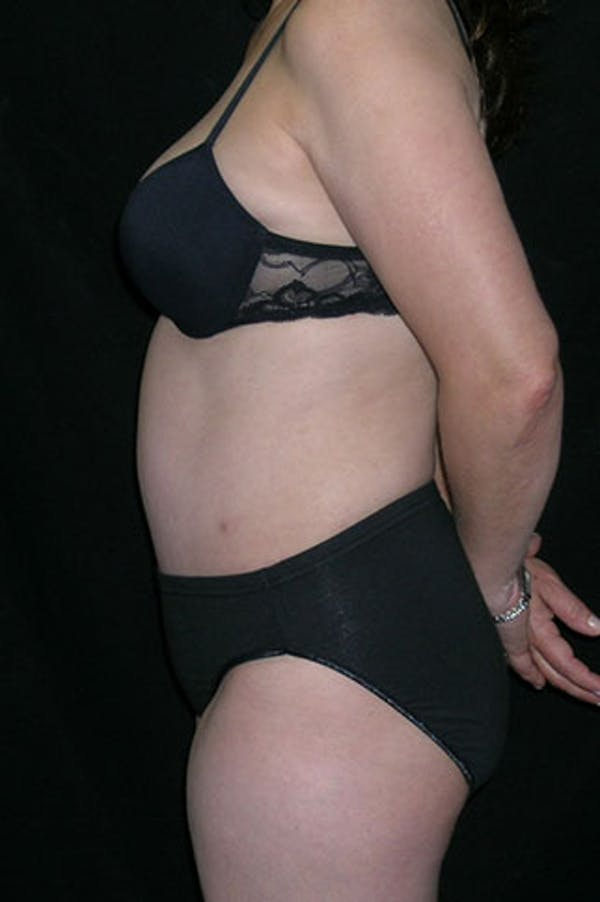 Tummy Tuck Gallery - Patient 23533917 - Image 4
