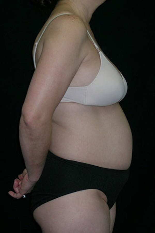 Tummy Tuck Gallery - Patient 23533917 - Image 5