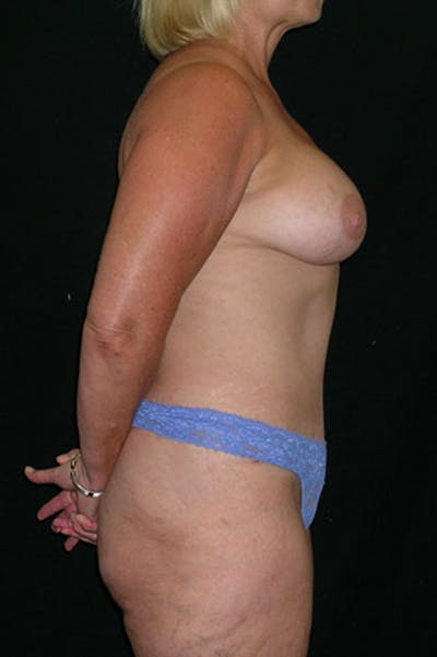 Mommy Makeover Gallery - Patient 23533919 - Image 8