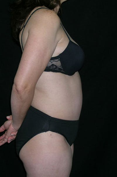 Tummy Tuck Gallery - Patient 23533917 - Image 6