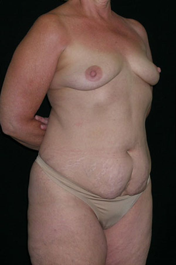 Mommy Makeover Gallery - Patient 23533919 - Image 9