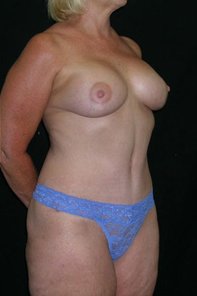 Mommy Makeover Gallery - Patient 23533919 - Image 10