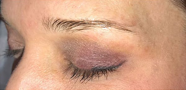 Microblading Gallery - Patient 23533921 - Image 1