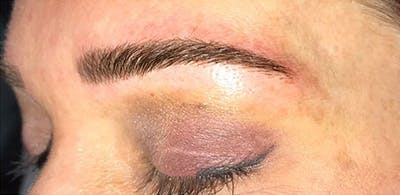 Microblading Gallery - Patient 23533921 - Image 2