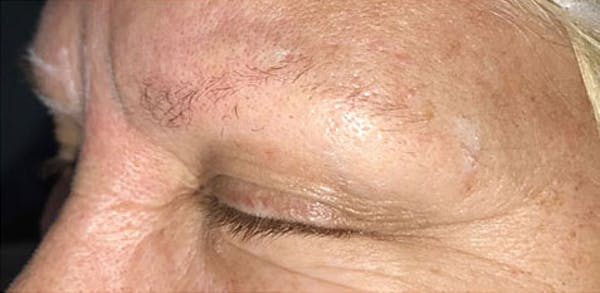 Microblading Gallery - Patient 23533923 - Image 1
